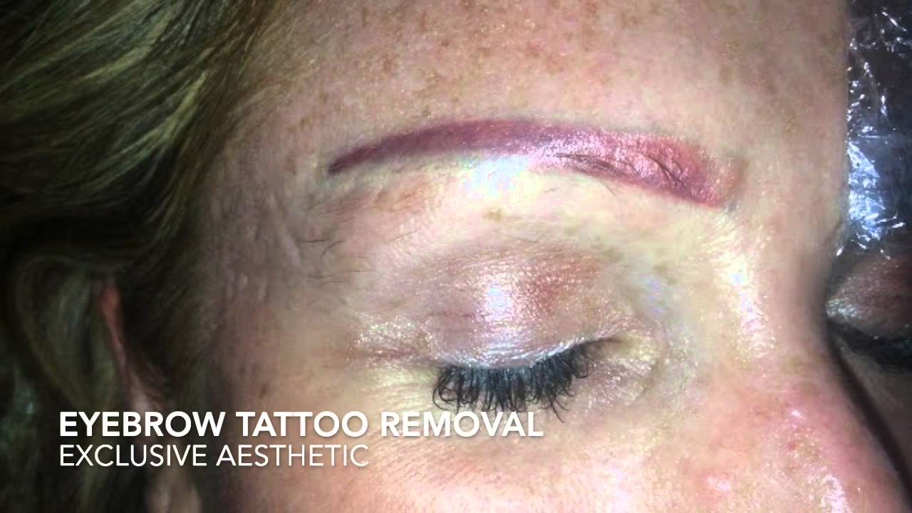 Eyebrow Tattoo Removal By Exclusive Aesthetic