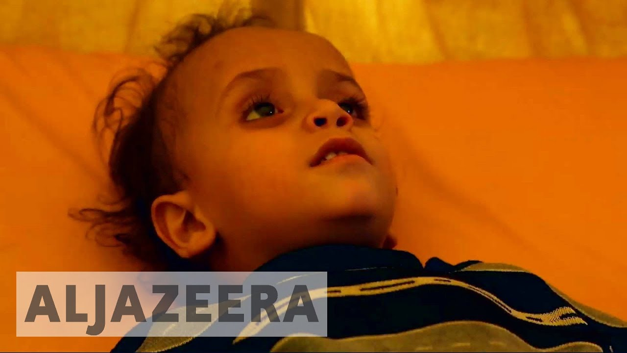 Cholera cases in Yemen may rise up to 300,000 - UN
