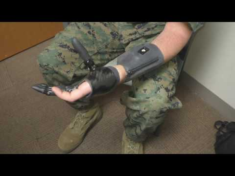 VINCENTpartial prosthesis fitted by Walter Reed National Military Medical Center