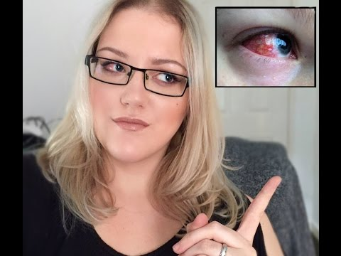 Strabismus surgery (squint/lazy eye) update - Recovery week 3