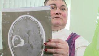 New brain cancer treatment at the University of Minnesota