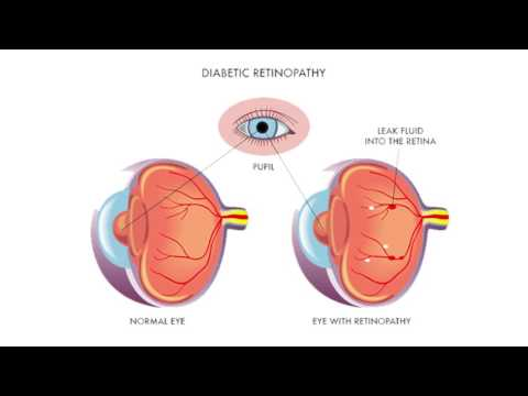 Macular Degeneration and Diabetes in the Eye