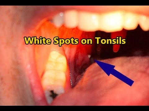 White Spots on Tonsils - YouTube