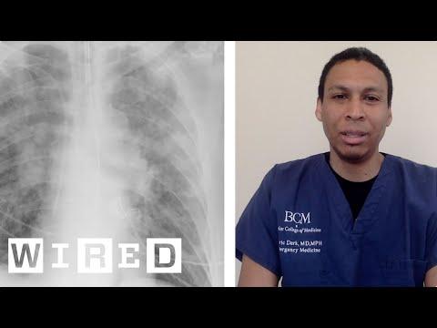 新型コロナウイルスと闘う医療現場は、どれだけ危険なのか? ERの医師が語った | WIRED.jp