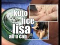 Lice all you can 🐜 Kuto Kutoon🐜🕷🕸 Lisa unli🐜🕸