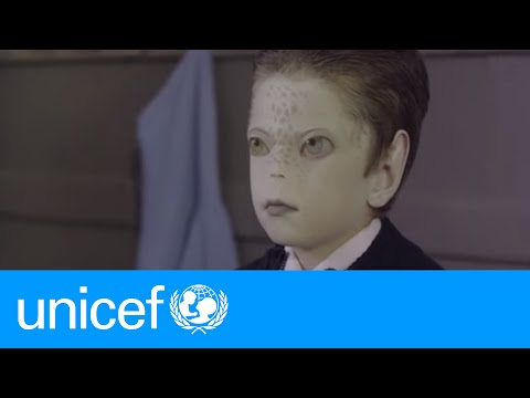 Marciano: An unexpected friend | UNICEF