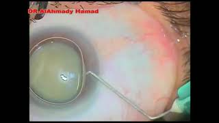 Closed chamber anterior capsulorhexis under air tamponade in a case of white cataract - ID 229440