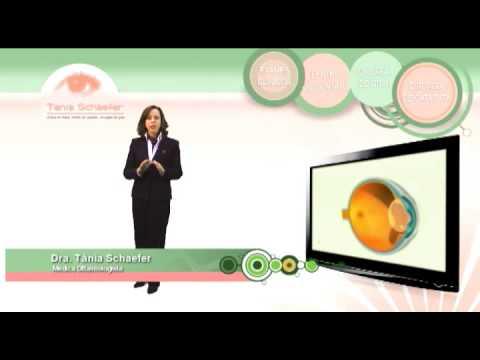 9f36fed27 Como tratar o ceratocone com óculos? - Clínica Schaefer - Oftalmologia em  Curitiba