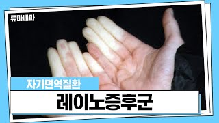 손가락 끝 시림이 심하면 레이노증후군?