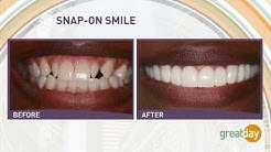 Houston Cosmetic Dentist...SNAP-ON SMILE..Changing lives the affordable way:)