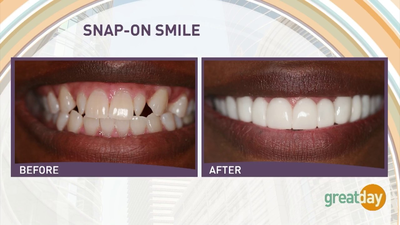 Snap-on Smile Uptown Houston | Cosmetic Dentist | Terri