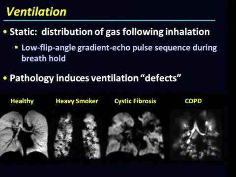 Hyperpolarized-gas MRI of the lung: Can research potential translate to clinical application?