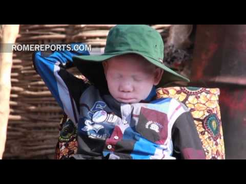 Albinos in Tanzania receive assistance from the UN and local authorities