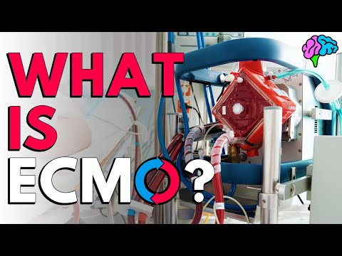 What is ECMO?