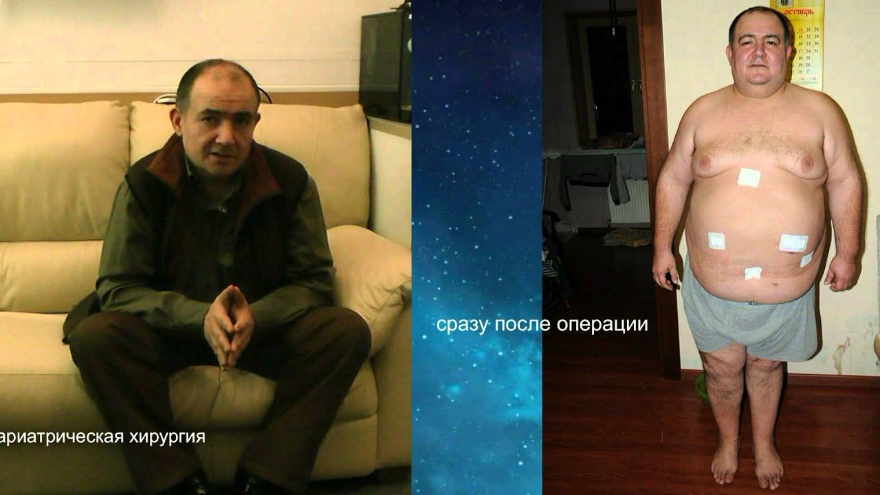 государствах азии баллонирование желудка фото до и после фотоаппарат компу