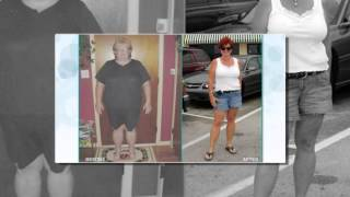 Obesity Surgery New Haven -- Fairfield County, CT