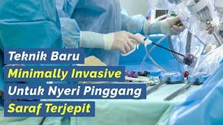 🔵 Terapi Alternatif Syaraf Kejepit Terbaru Dengan Endoskopi PELD.
