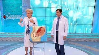 Здоровье Опухоль вматке  Что делать при беременности (27 11 2016)