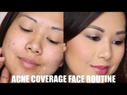 acne-+-dark-spot-coverage-routine-|-full-face-concealer-+-foundation