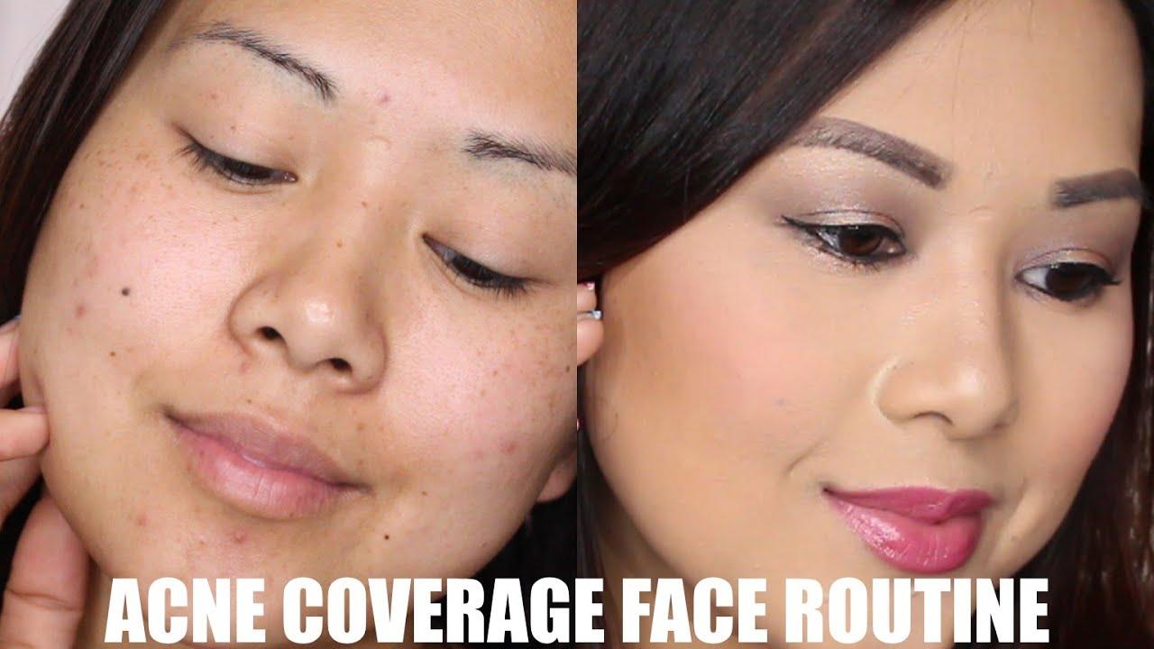 Acne + Dark Spot Coverage Routine