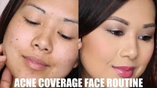 Acne + Dark Spot Coverage Routine | Full Face Concealer + Foundation