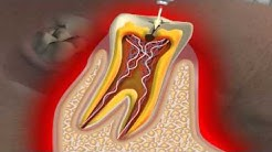 What is a Cavity?