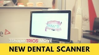 Review of the 3Shape Trios Move - new intraoral dental scanner