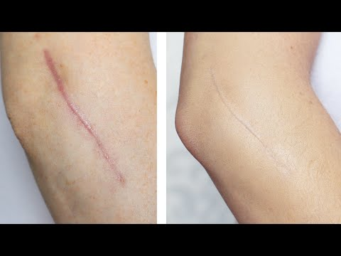 How To: Cover / Conceal A Scar