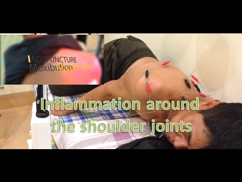 Acupuncture for limiting shoulder joint inflammation ...