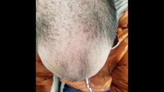 AMAZING male pattern baldness hair loss recovery