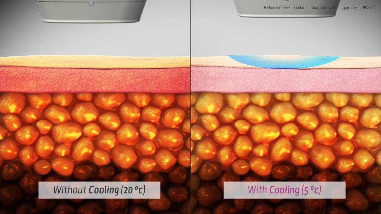 LIPOcel™ l HIFU body contouring, fat reduction device