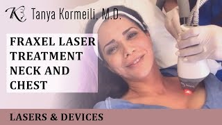 Fraxel laser treatment of the neck and chest