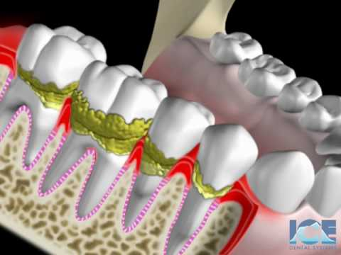 Gum Disease Youtube