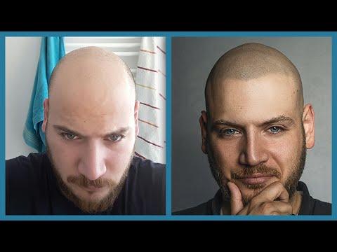 Haarpigmentierung Kosten: Wie teuer ist eine Pigmentierung?