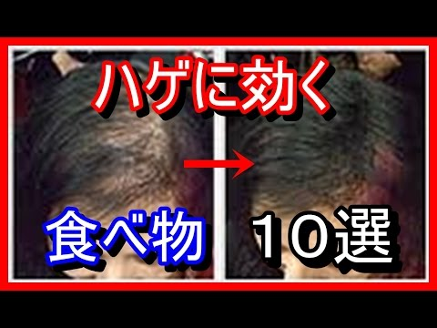 【驚愕】薄毛対策にいい食べ物10選!ハゲない食事はコレだ!