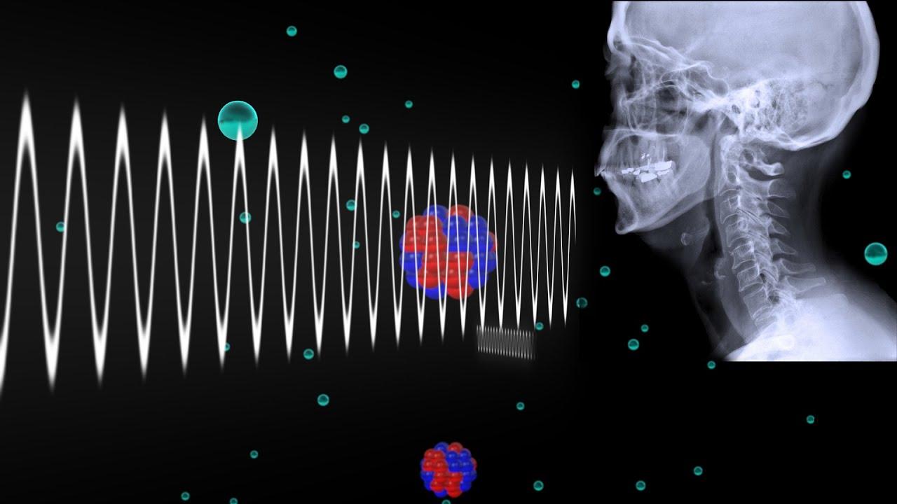 How Do X Rays Work