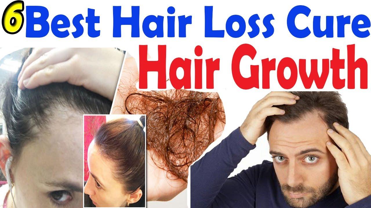 6 Best Hair Loss Cure 2017 \u0026 Treatment  Hair Loss Treatments 2017  YouTube