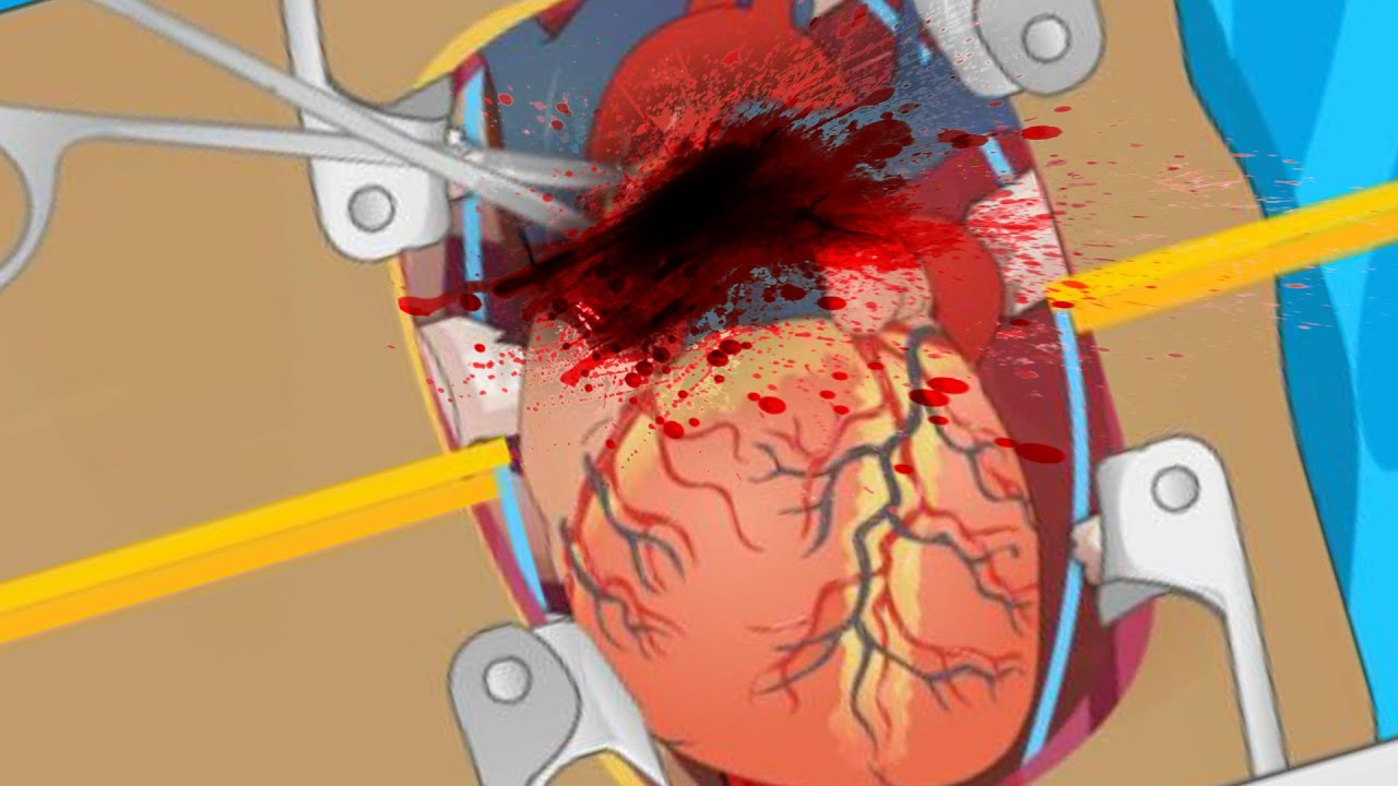HEART SURGERY (Flash Game) - YouTube