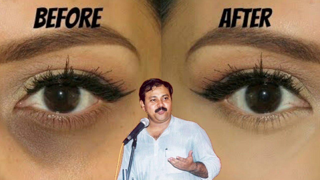 Rajiv dixit for All Skin Disease Cured by Saliva Dark circle Under     Rajiv dixit for All Skin Disease Cured by Saliva Dark circle Under Eye Bags Swadeshi  Chikitsa Saliva