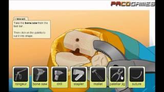 Virtual Knee Surgery - illustrative video