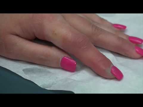 Worst Nail Infections of All Time, 2017