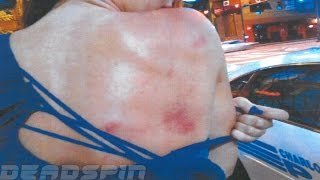 """Greg Hardy girlfriend beat photos """"New photos domestic violence """" pictures released"""