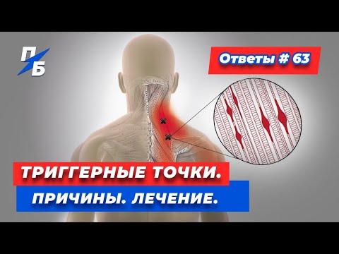 Триггеры в мышцах. Почему появляются. Как лечить. Мой опыт. Ответы 63
