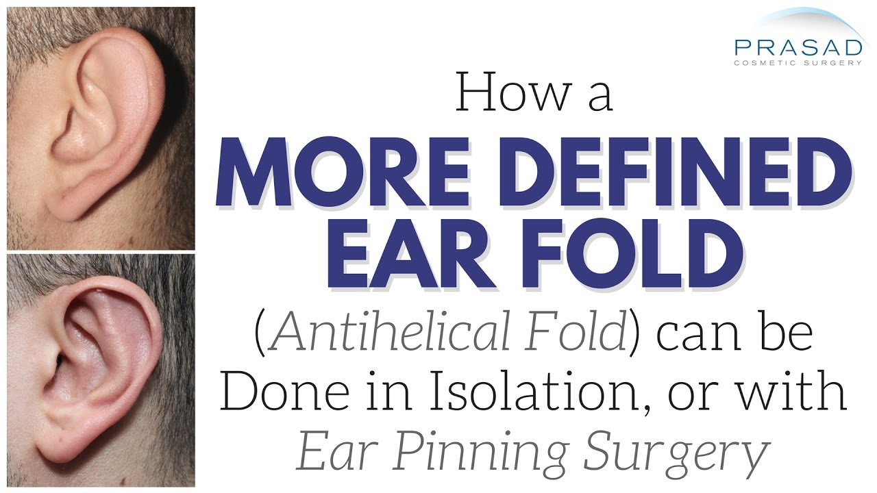 How a More Defined Ear Fold (Antihelical Fold) can be Done in ...