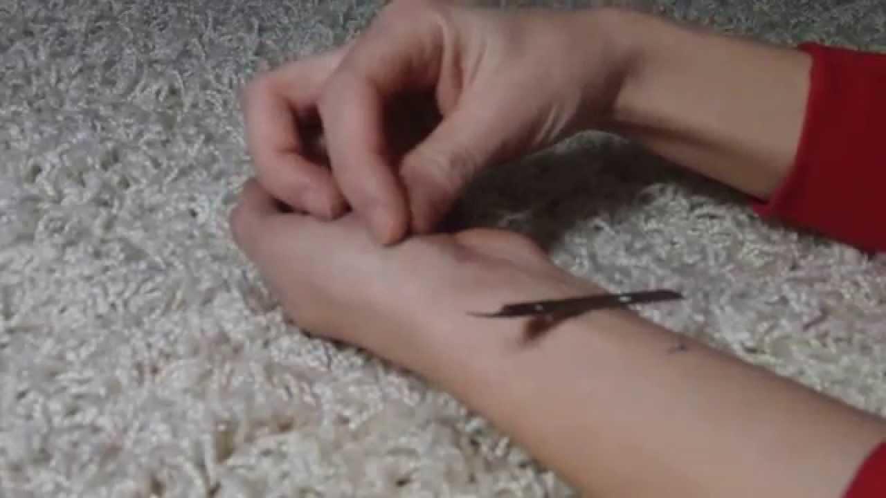 Intrakutannaht fäden ziehen Frage: Arten