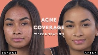 COVERING ACNE WITH FOUNDATION | FENTY BEAUTY