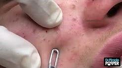 hq2 - Teenage Pimples On Nose