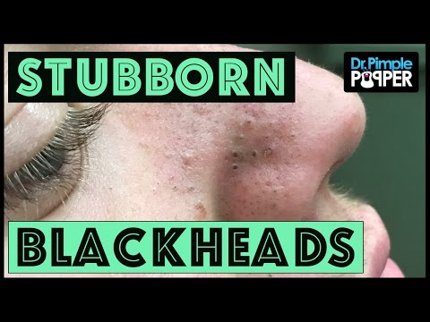 Thumbnail: Blackhead Extractions in a Teenager with Acne