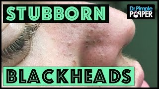 blackhead Extractions in a Teenager with Acne | LOAN NGUYEN