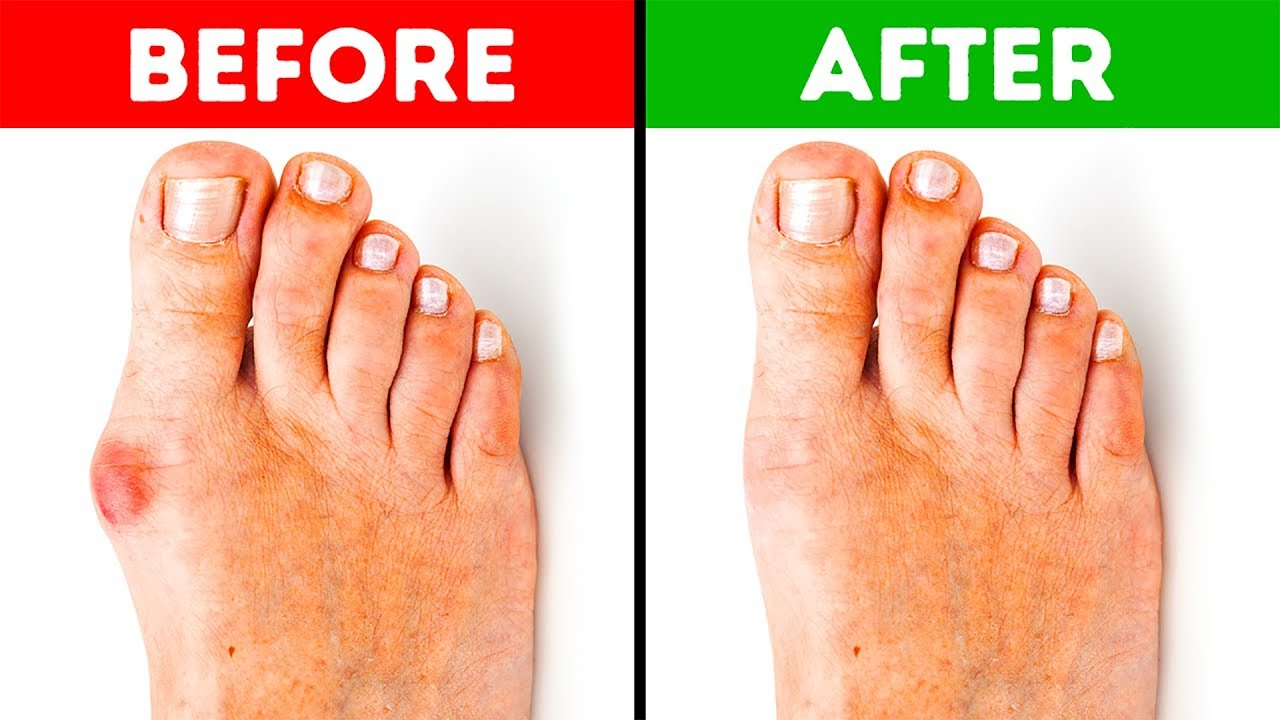 Image result for no more bunions